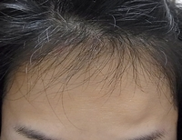 ケア プロスト 産毛