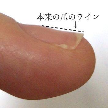 tsume3.jpg