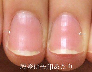 tsume5.jpg